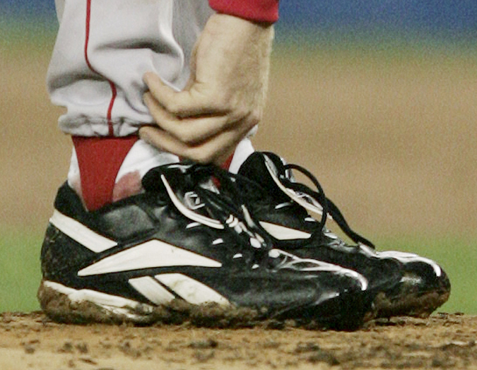 Boston Red Sox pitcher Curt Schilling tends to his right ankle during the third inning of game 6 of the American League Championship Series against the New York Yankees in this photo taken on Oct. 19. 2004, in New York.