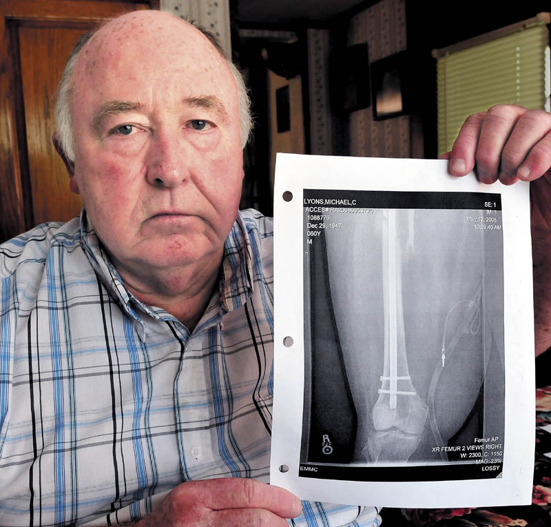 Mike Lyons, of Vassalboro, holds a copy of an X-ray of his femur, which was repaired after he was injured in a collision with an uninsured motorist in Winslow in 2008.