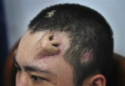 In this Tuesday Sept. 24, 2013 photo, a 22-year-old patient, with a surgical made extra nose out of his rib cartilage and implanted under the skin of his forehead, rests at Fujian Medical University Union Hospital, in Fuzhou city, in southeast China's Fujian province. A surgeon in China said he has constructed the extra nose to prepare for a transplant in probably the first operation of its kind. Surgeon Guo Zhihui at the hospital spent nine months cultivating the graft for the man whose nose was damaged.