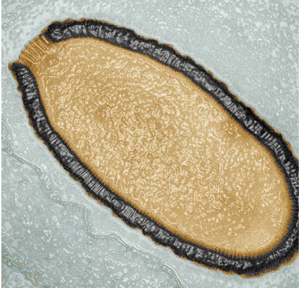 Transmission electron microscopy color image of a Pithovirus sibericum cross-section. This virion, dating back more than 30,000 years, is 1.5 microns long and 0.5 microns wide, which makes it the largest virus ever discovered. For comparison, the minimum width of a human hair is 17 microns.