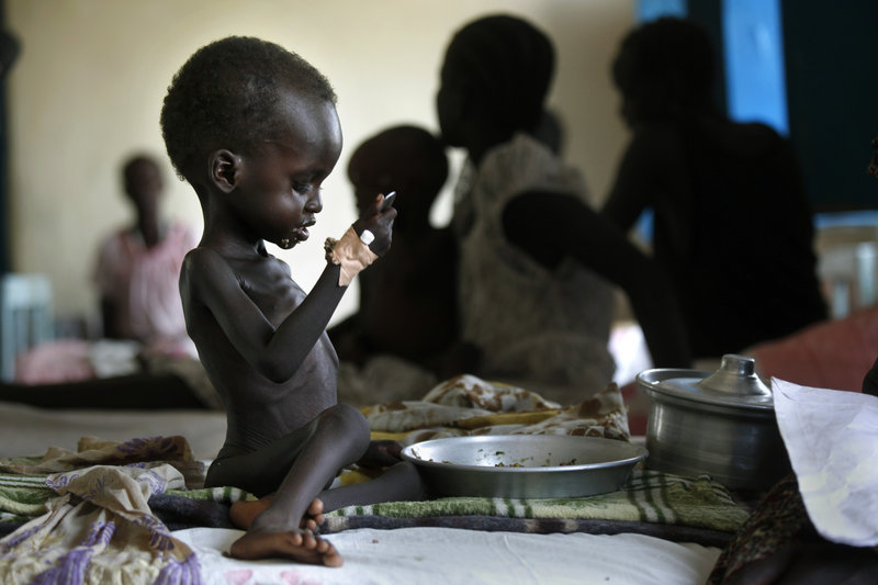 Nyagod Kuel, 2, eats on her bed in a hospital ward in southeastern Sudan. Global warming could leave millions more children malnourished, global food experts reported Wednesday.