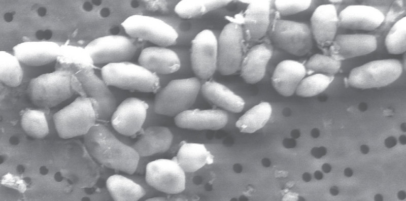 Image shows a scanning electron micrograph of strain GFAJ-1, a strange bacterium that can use deadly arsenic as one of its nutrients.