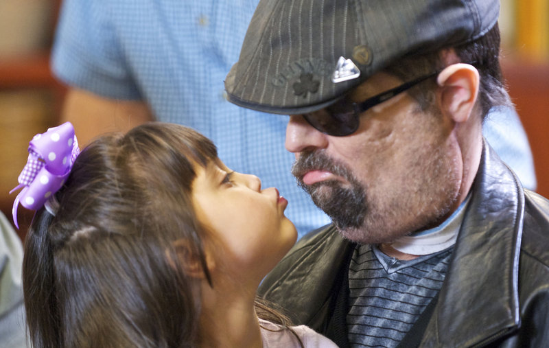 Dallas Wiens, who received a full face transplant in March and made his first public appearance Monday, mugs with his daughter, Scarlette, last week.