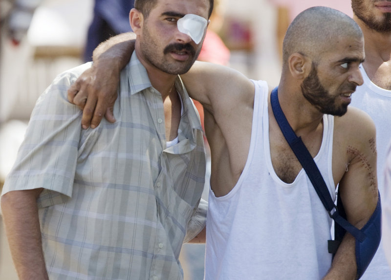 Wounded Syrian refugees walk toward an ambulance Wednesday in Yayladagi, Turkey. Turkey is sheltering more than 10,000 Syrians in four border camps, the U.N. said.