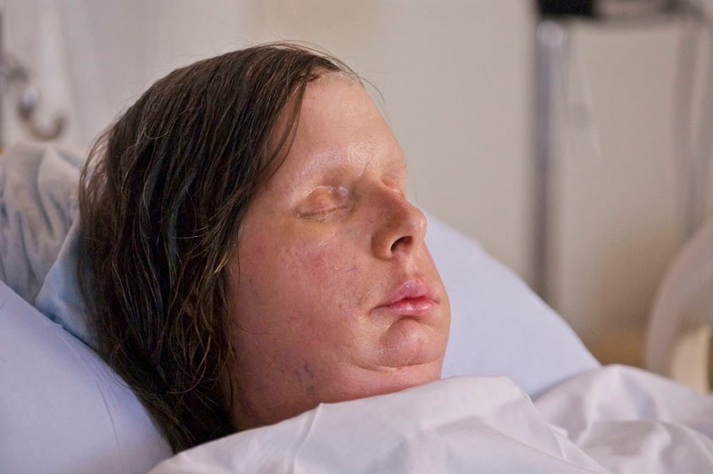 In this undated photo provided by Brigham and Women's Hospital, Charla Nash is seen after her May, 2011, face transplant at the hospital. The Connecticut woman was mauled by a chimpanzee in 2009.