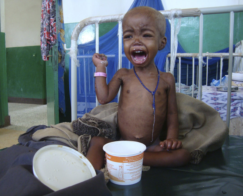 A child is treated Tuesday at a hospital in Mogadishu, Somalia. Some 12 million Somalis are facing starvation.