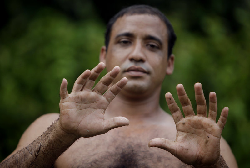 "Yoandri Hernandez Garrido, 37, affectionately known as ""Twenty-four,"" shows his 12 fingers. ""People admire me and I am very proud,"" he says."