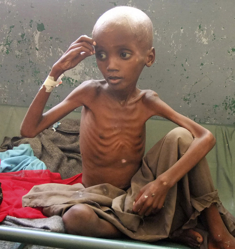 A severely malnourished child from southern Somalia sits in a Mogadishu hospital Monday. Famine continues to spread, leading the U.N. to declare a sixth famine zone on Monday.