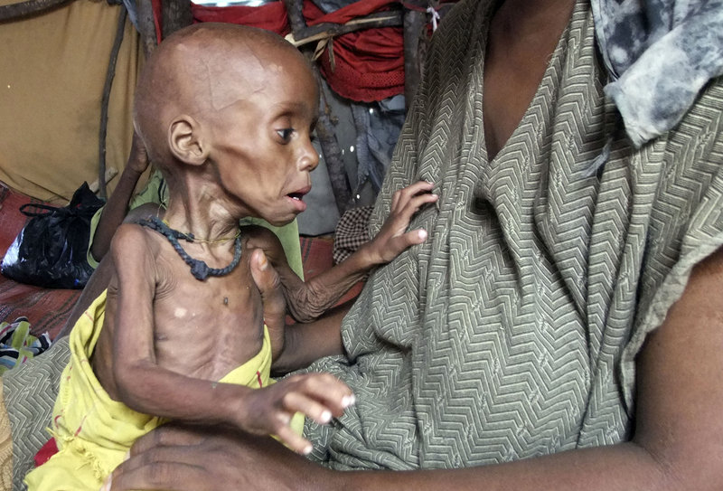 """A severely malnourished child from southern Somalia is cared for Tuesday at a makeshift shelter inside a refugee camp in Mogadishu. A U.S. educator called Wednesday for the U.S. to expand its aid response """"beyond incrementalism."""""""