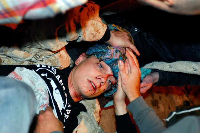 In this photo taken on Tuesday, 24-year-old Iraq War veteran Scott Olsen lays on the ground bleeding from a head wound after being struck by a projectile during an Occupy Wall Street protest in Oakland, Calif.