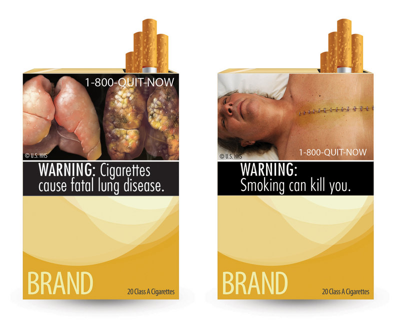 These are two of nine new warning labels approved for use on cigarette packaging. A judge says the images go beyond conveying the facts.