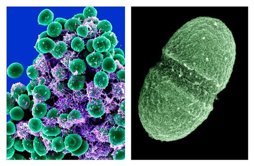Image at left provided by the National Institute of Allergy and Infectious Diseases shows a clump of Staphylococcus epidermidis bacteria (green) in the extracellular matrix, which connects cells and tissue, taken with a scanning electron microscope. At right is an image provided by the Agriculture Department of the bacterium Enterococcus faecalis, which lives in the human gut.
