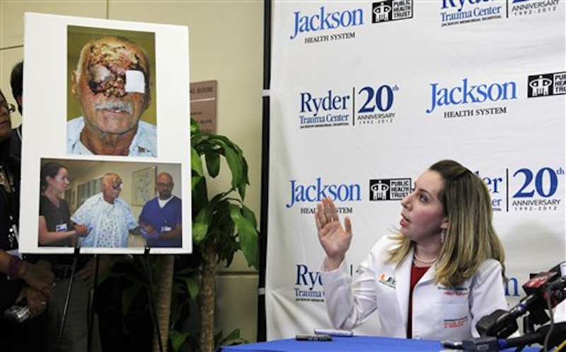 Dr. Wrood Kassira, right, a University of Miami/Jackson Memorial Hospital plastic surgeon, gestures as she speaks on the condition of Ronald Poppo, pictured at left, during a news conference, Tuesday, June 12, 2012 in Miami. Poppo was a homeless man whose face was mostly chewed off in a bizarre attack along a busy Miami street May 26. (AP Photo/Wilfredo Lee)