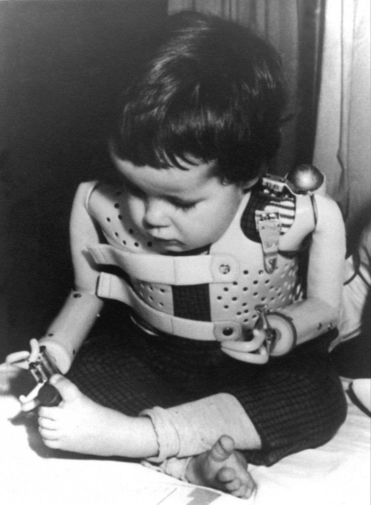 A 1965 file photo shows a 3-year-old girl born without arms to a mother who took thalidomide. Gruenenthal has for the first time apologized to people who were born with congenital birth defects as a result of the drug's use.