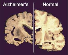 Image shows a cross section of a normal brain, right, and one of a brain damaged by Alzheimer's disease.