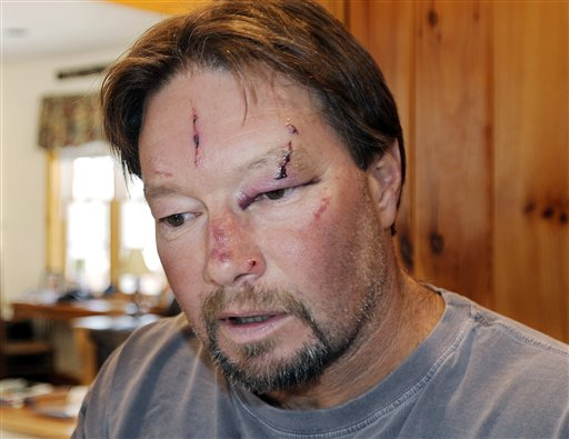 Roger Mundell Jr. bears cuts on his face from an attack by a bobcat in his garage in Brookfield, Mass. The cat ran out of the garage and bit Mundell's 15-year-old nephew on the arms and back before it was shot dead.