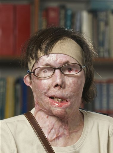 This July 2011 photograph provided by Brigham and Women's Hospital shows face transplant patient Carmen Blandin Tarleton before her surgery earlier this month.