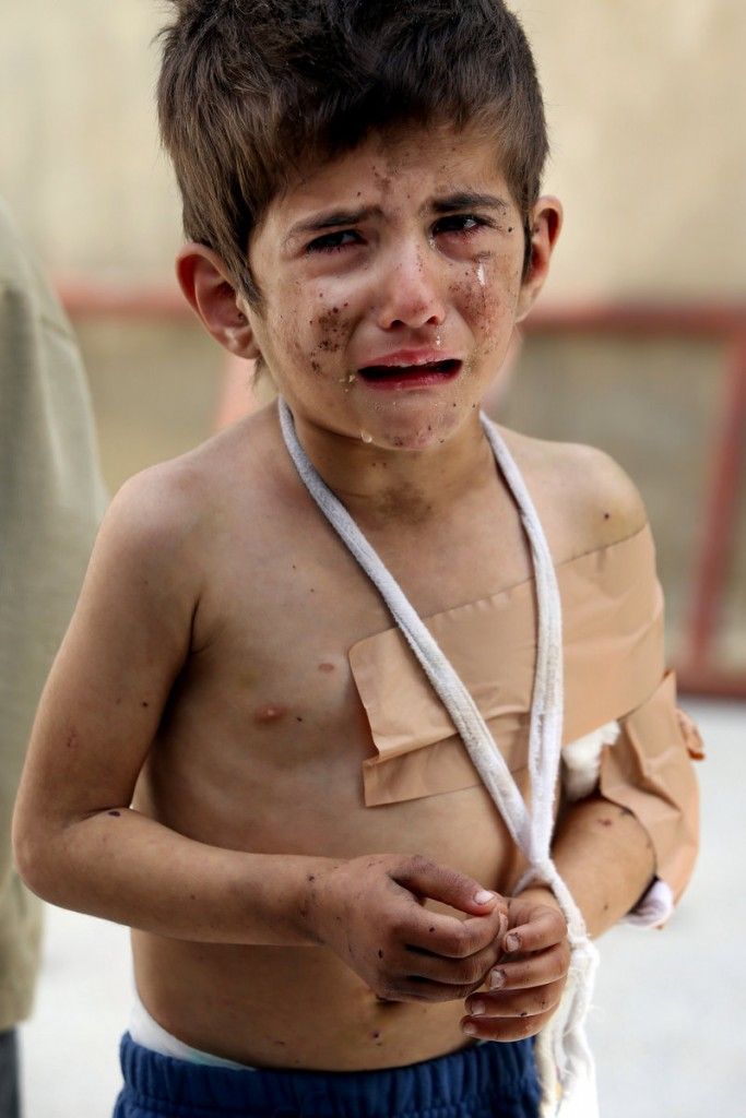 A Syrian girl, Bushra al-Hassan, 4, injured in a government airstrike, cries at Jabal al-Zaweya village of Sarjeh, in Idlib, Syria, on Monday.