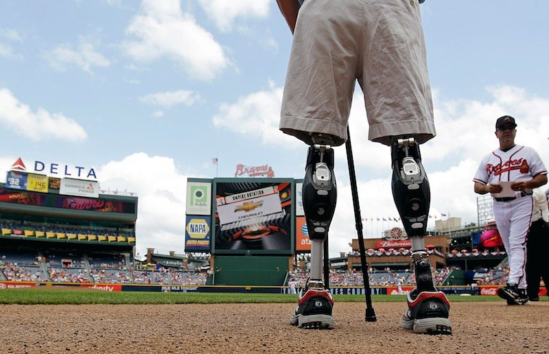 In this Monday, May 28, 2012 file photo, U.S. Army Capt. Dan Berschinski, foreground, uses prosthetic legs to stand on the field before a baseball game between the St. Louis Cardinals and Atlanta Braves in Atlanta. Nearly 2,000 American troops have lost a leg, arm, foot or hand in Iraq or Afghanistan, and their sacrifices have led to advances in the immediate and long-term care of survivors, as well in the quality of prosthetics that are now so good that surgeons often chose them over trying to save a badly mangled leg. (AP Photo/David Goldman)