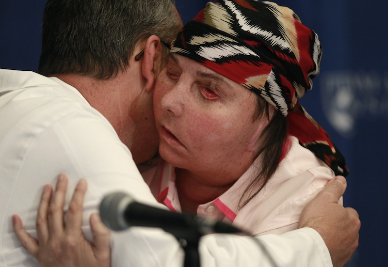 Carmen Blandin Tarleton of Thetford, Vt., embraces her surgeon, Dr. Bohdan Pomahac, during a news conference at Brigham and Women's Hospital in Boston, Mass., Wednesday, May 1, 2013. The 44-year-old mother of two underwent a successful face transplant in February after a 2007 attack in which her estranged husband doused her with industrial strength lye, burning more than 80 percent of her body. (AP Photo/Charles Krupa)