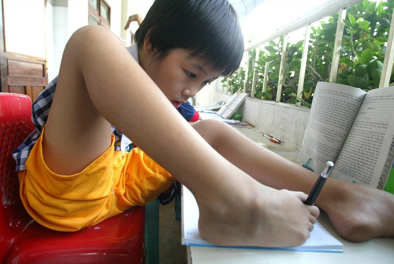 Born without arms, Pham Thi Thuy Linh, 10, writes with her foot at Tu Du hospital in Ho Chi Minh City in a 2004 photo. U.S. aid to help clean up the Agent Orange dioxin contamination and help existing victims has been minimal, but that may be changing.