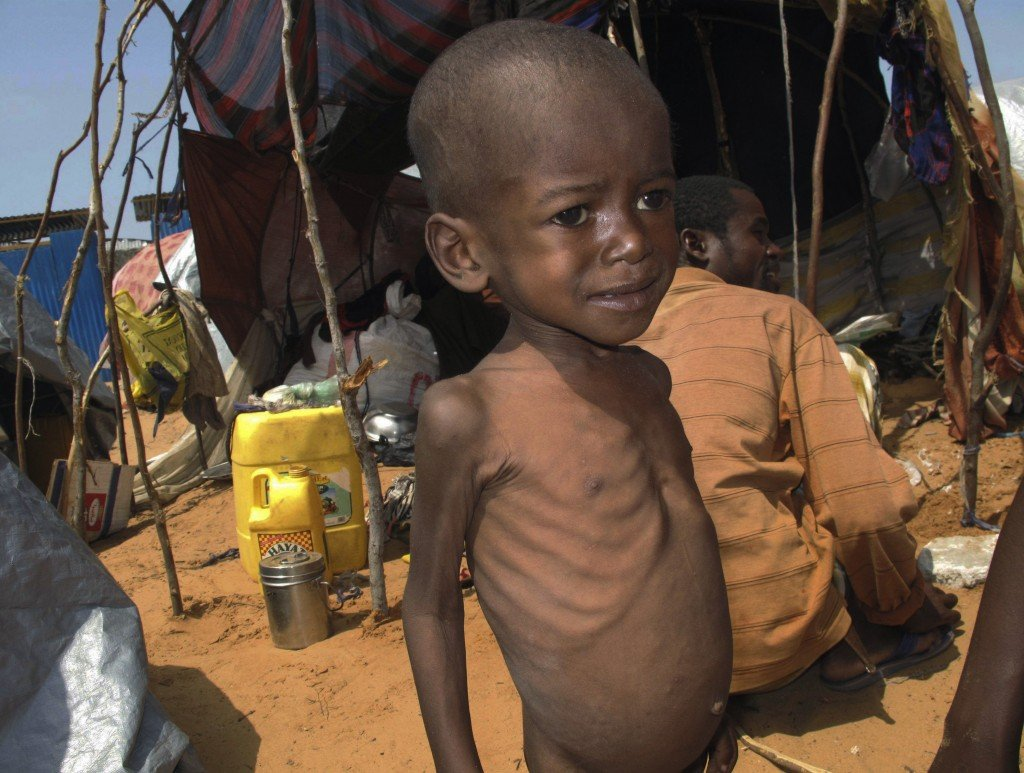 "A malnourished child stands in front of a makeshift shelter in Mogadishu, Somalia. Starvation is just one of the many challenges that will be ""exacerbated"" by global warming, a leaked report by an international panel says. Other challenges predicted to worsen because of world climate change include poverty, flooding, heat waves, droughts, war and disease."