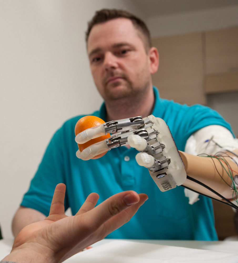 """Amputee Dennis Aabo Sorensen holds an orange while wearing the sensory feedback prosthesis. """"It was the closest I have had to feeling like a normal hand,"""" he says."""