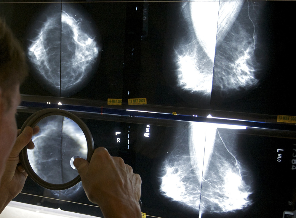 In this Thursday, May 6, 2010 file photo, a radiologist uses a magnifying glass to check mammograms for breast cancer in Los Angeles in this file photo. A Canadian study published Wednesday in the British journal BMJ has revived a debate about the value of mammograms.