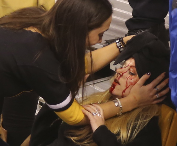 Caitlynn Brown helps her friend Sabina Grasso after a pole struck Grasso in the head following a Boston Bruins game Thursday night at TD Garden.