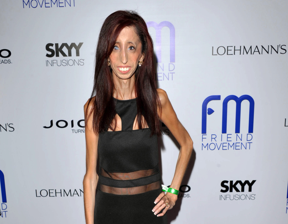 "Author and motivational speaker Lizzie Velasquez, who was born with a rare syndrome that prevents her from gaining weight, is raising funds on Kickstarter or an anti-bulling documentary titled, ""The Lizzie Project."""