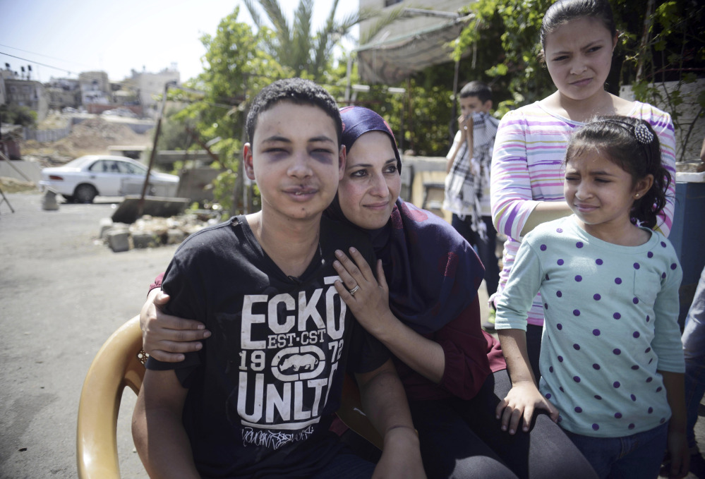 Tariq Abu Khdeir is hugged by his mother Suha after he was released from detention in Jerusalem on Sunday.