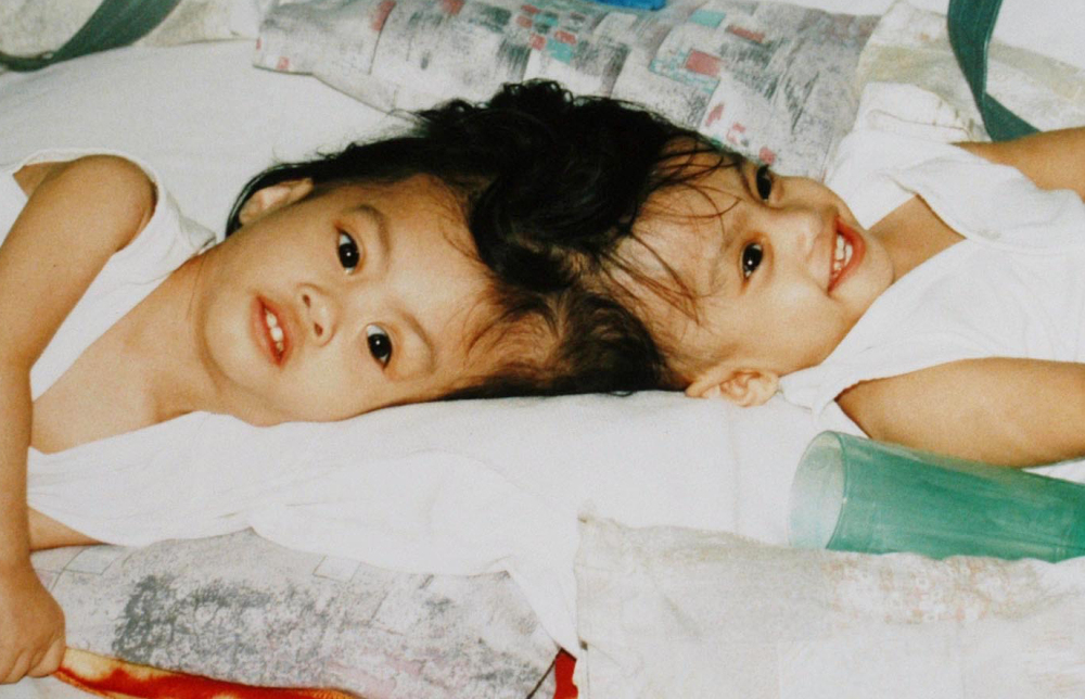 Carl, left, and Clarence Aguirre are shown at 17 months old in 2003. Although doctors in the Philippines said only one could be saved, doctors at Montefiore Medical Center in the Bronx separated and saved both in 2004.