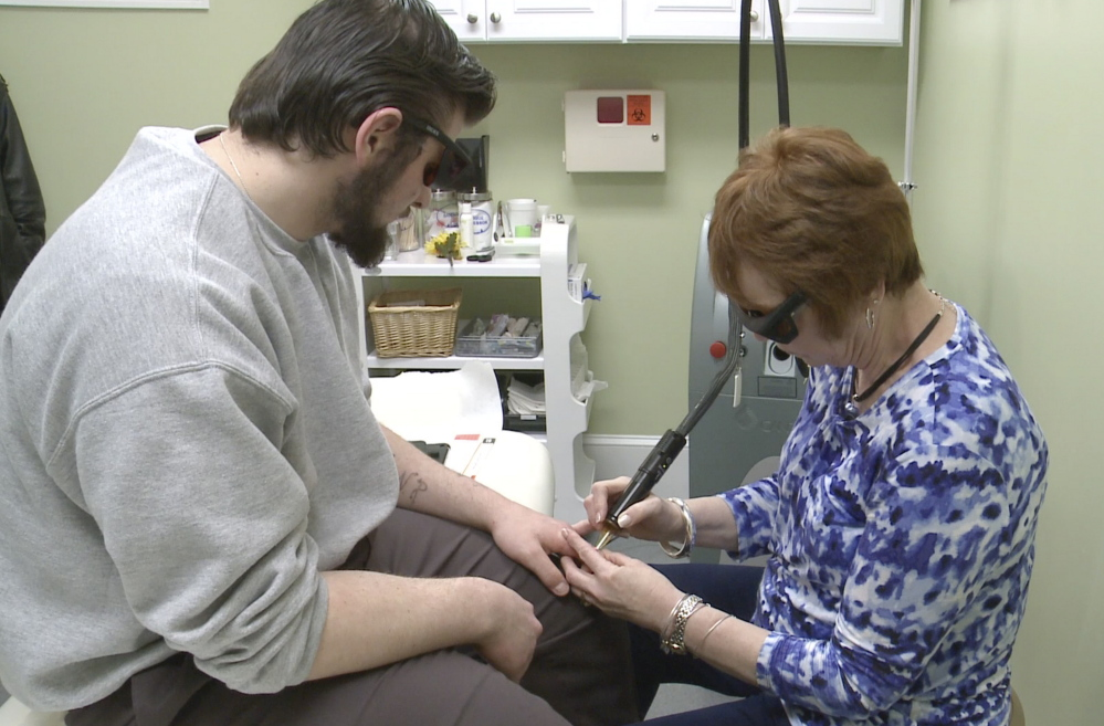 Nonie Letellier, a registerd nurse at the Cosmetic Enhancement Center in Portland, removes tattoos from Damien Clinton's knuckles. Clinton is a resident at Long Creek Youth Development Center.
