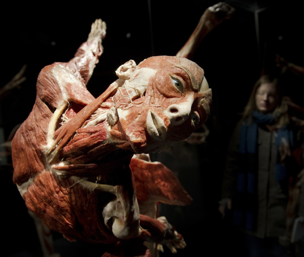 "A visitor looks at plastinated human bodies during a February 2015 media preview before the opening of the ""Body Worlds"" exhibit in Berlin. Plastination preserves real human remains for study using a process that replaces bodily fluids and fat with fluid plastic."