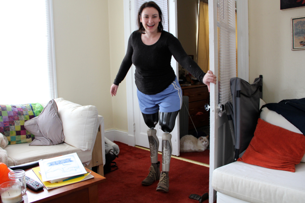 Clara Gardner, 24, whose legs were crushed when a drunk driver crashed into her seven years ago, will undergo life-changing surgery in Australia.