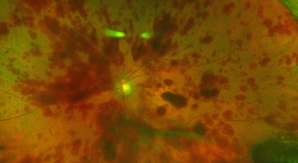 This photo provided by Dr. Thomas Albini shows an interior view of the left eye of a patient who suffered a detached retina after undergoing an unproven stem cell treatment.