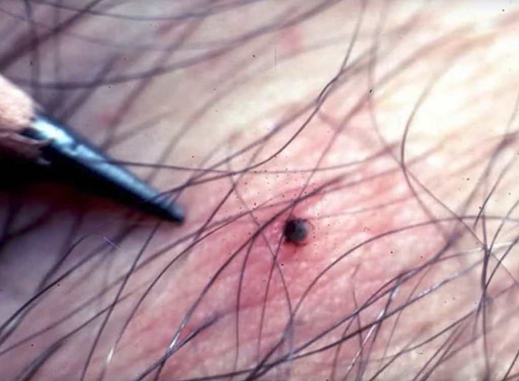 10% Of New Tick-Borne Illness Cases Fatal