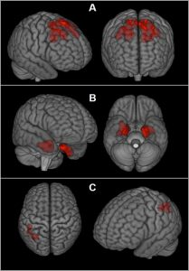 Football_Concussions_Brain_Scans_06873