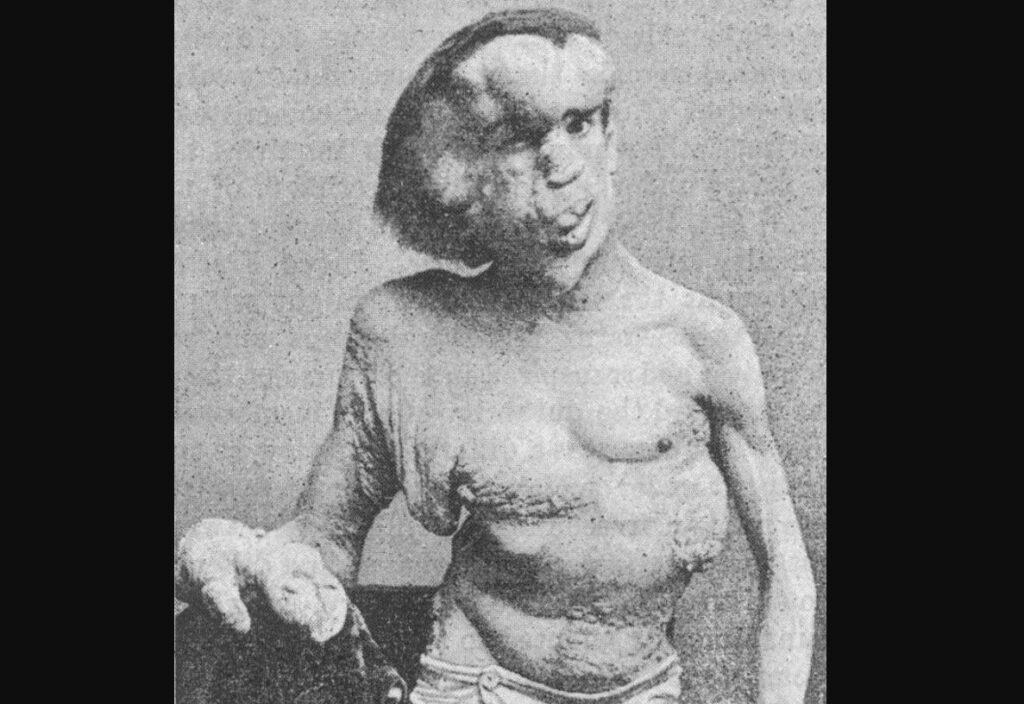 """A photo of Joseph Merrick, often referred to as the """"Elephant Man,"""" taken in 1889. This photo was originally published in the British Medical Journal, Vol. 1, No. 1529 (April 19, 1890)."""