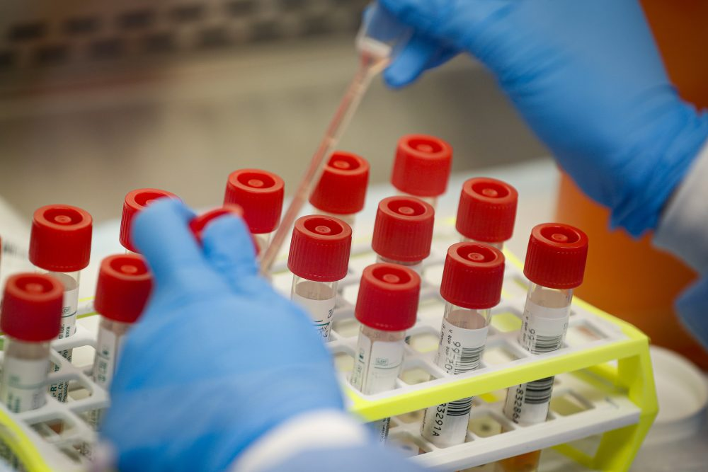 A new message on coronavirus in hard-hit areas: Don't get tested