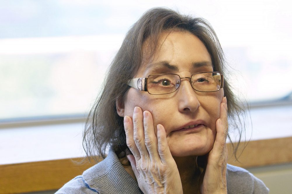 Connie Culp, the nation's first partial face transplant recipient, speaks with the Associated Press in 2010 at the Cleveland Clinic in Cleveland.  She died Wednesdayof complications from an infection unrelated to her transplant.