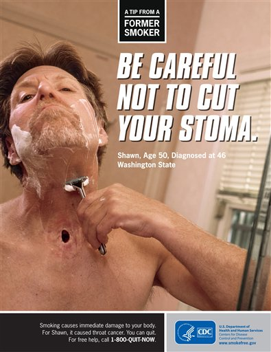 This advertisement provided by the Centers for Disease Control shows Shawn Wright, who had a tracheotomy after being diagnosed with head and neck cancer. The CDC is trying to shock smokers into quitting with a graphic nationwide advertising campaign.