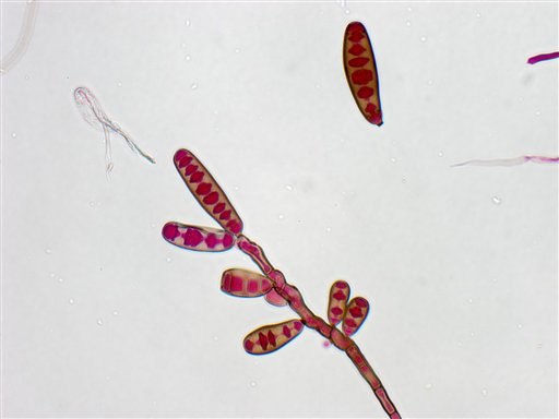 This undated file image from The Centers for Disease Control and Prevention shows the Exserohilum rostratum fungus. The black mold creeping into the spines of hundreds of people who got tainted shots for back pain marks uncharted medical territory. Autopsy findings make clear that treating early is crucial, before the fungus becomes entrenched.