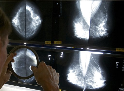 A radiologist uses a magnifying glass to check mammograms for breast cancer in Los Angeles in this 2010 photo.