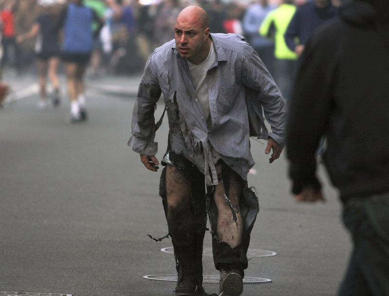 """The image shows James """"Bim"""" Costello staggering away from the Boston Marathon bombings, his body singed black by the explosions."""