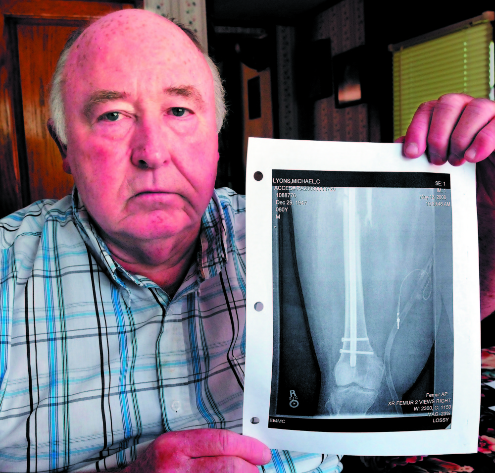 IMPACT: Mike Lyons of Vassalboro holds a copy of an X-ray of his femur that was repaired after it was injured severely when an uninsured motorist's vehicle struck his in 2008 in Winslow. Lyons is promoting a bill that would increase penalties for some uninsured drivers. It was defeated by a Senate committee but is still up for consideration in the House.