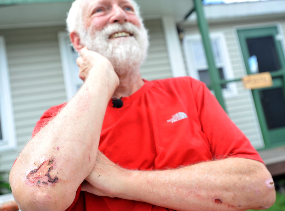 Harold Helm, 70, of Pleasant Hill, Calif, smiles as he prepares to treat some wounds on his elbows after taking a fall on the Appalachian Trail near Wyman Township on Wednesday,.