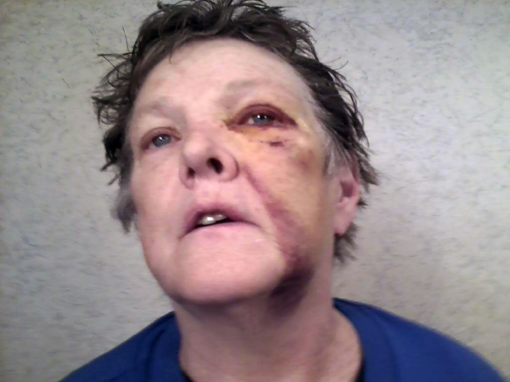 Nancy Austin after the Saturday attack at Riverview Psychiatric Center, in which a 23-year-old patient is accused of hitting her with a chair.
