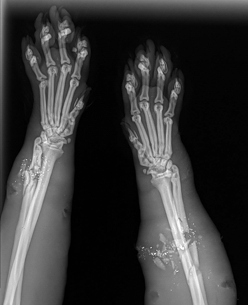 An X-ray of Clark the cat shows the shattered bones in his front legs Wednesday at the Animal Refuge League in Westbrook. Pellets from a 16-gauge shotgun used by a police officer, who thought the animal was rabid, shattered one bone in each of the cat's front legs. The cat was a longtime stray in Gorham, where a local resident, Deb Webb, fed him regularly over the years.