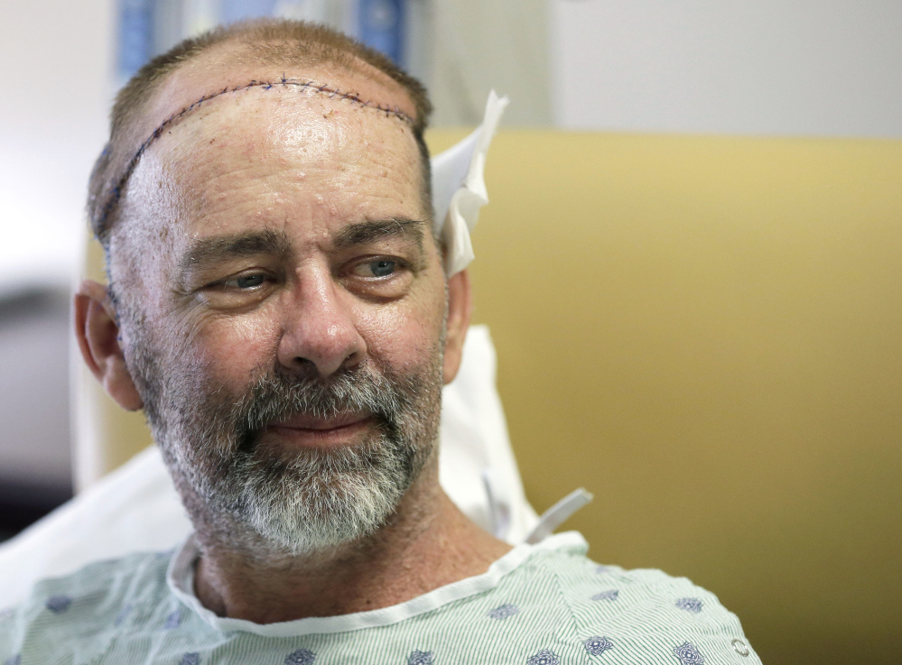 James Boysen is interviewed in his hospital bed at Houston Methodist Hospital in Houston. Texas doctors say he received the world's first skull and scalp transplant from a human donor to help heal a large head wound from cancer treatment.
